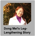 Lengthening patient  case report
